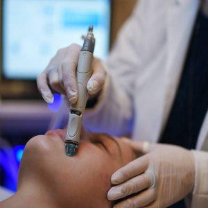 Hydrafacial Tratament de curățare a tenului